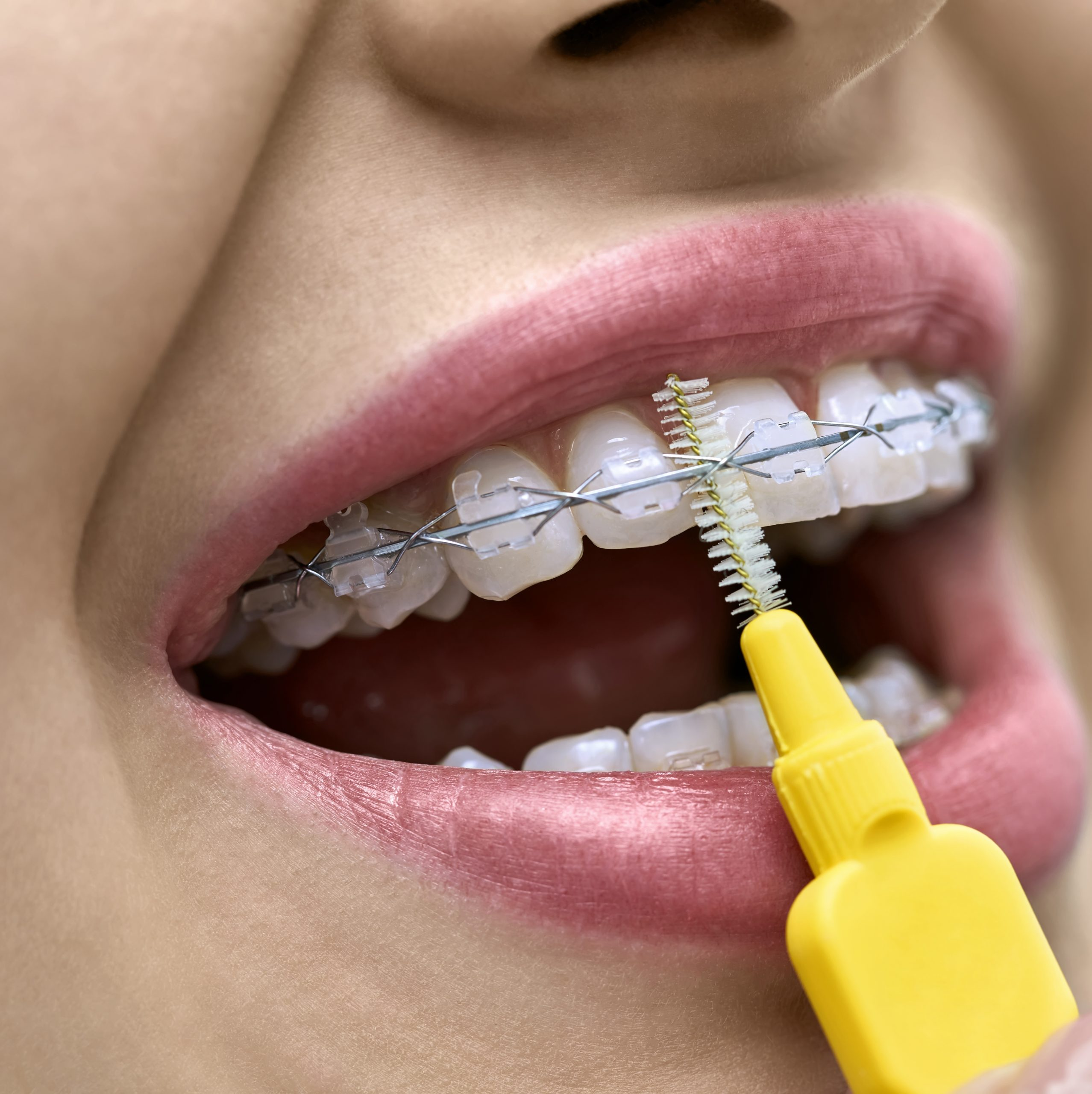Woman is showing her teeth with braces in a dental clinic. Dentist is cleaning her bracket system with a help of a special brush. Macro horizontal photo.