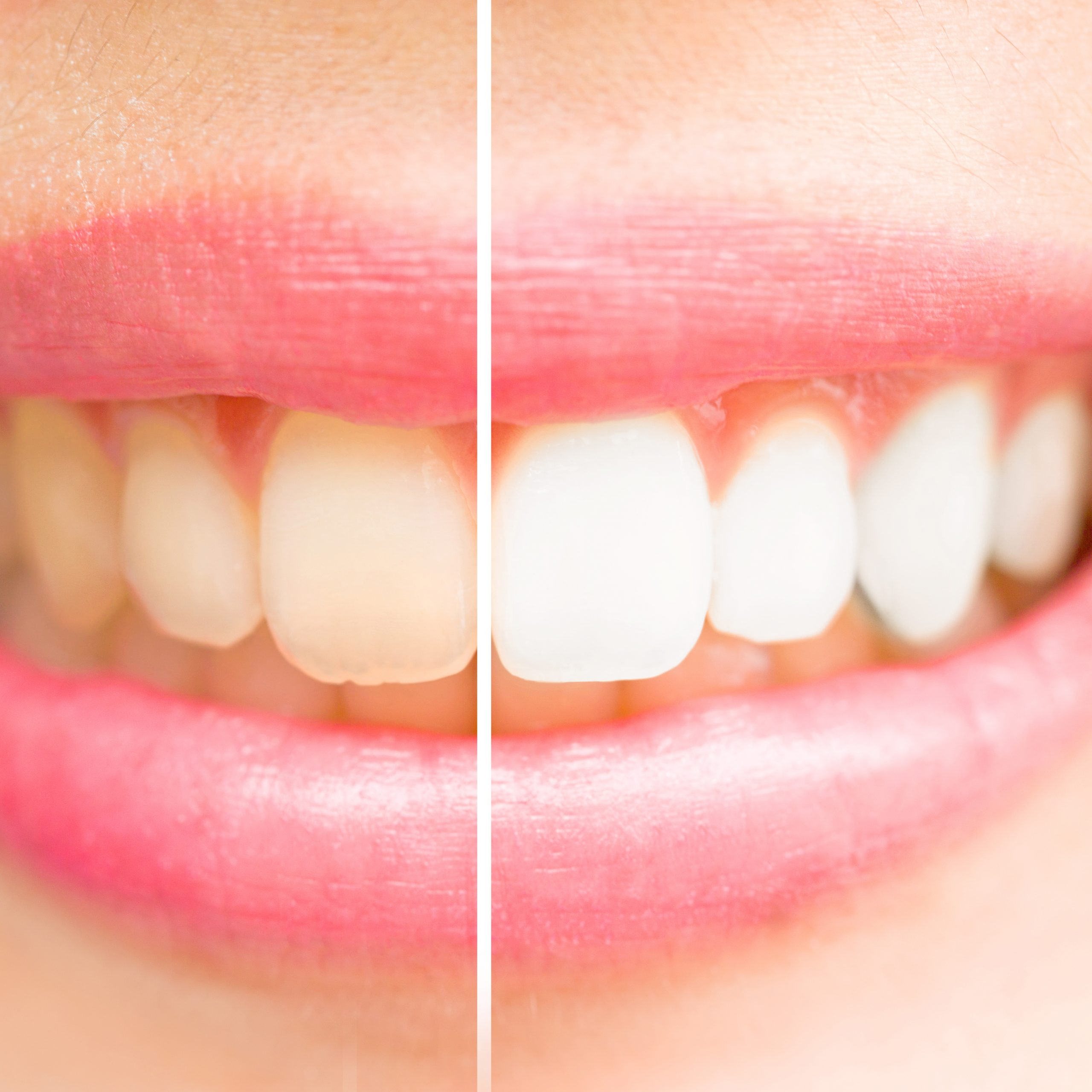 Teeth Whitening Norwich Before and After